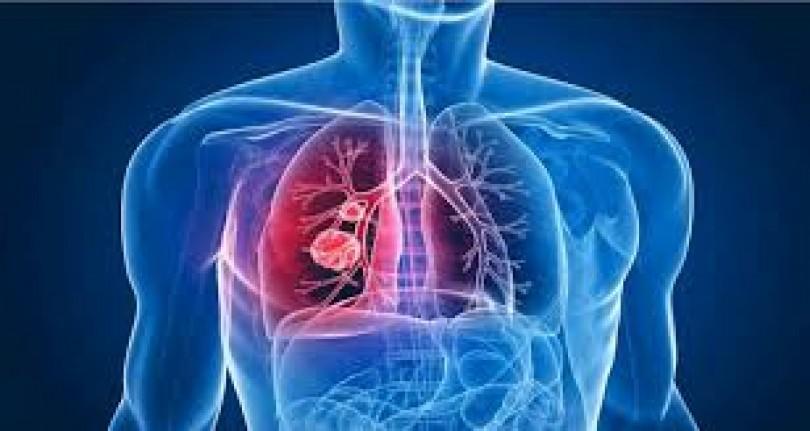 Brasil assume conselho de entidade que combate a tuberculose no mundo